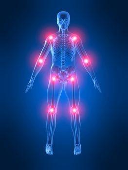 Fibromialgia pressure points